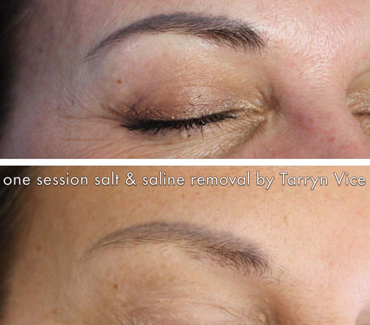 Permanent make up correction and removal