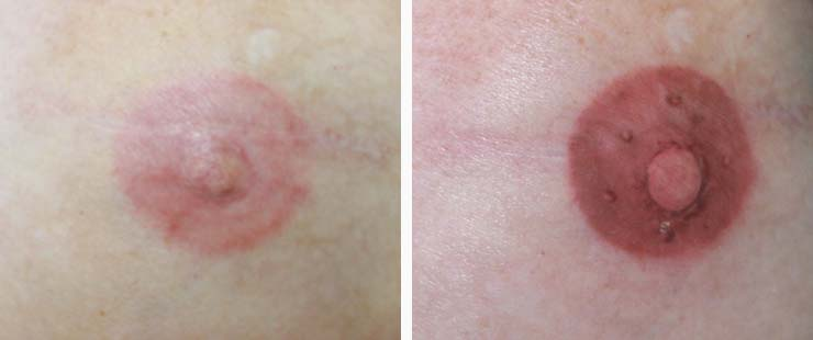 areola and nipple colour coorrection