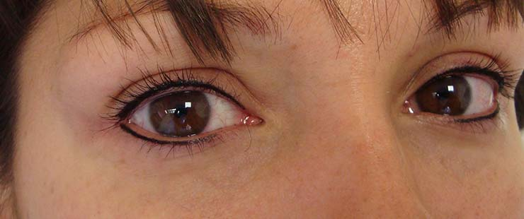 Semi permanent lash line enhancement
