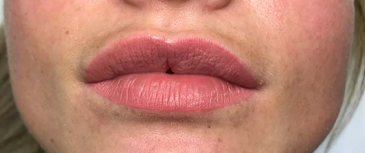 Semi Permanent Lip Blush Haywards Heath & West Sussex