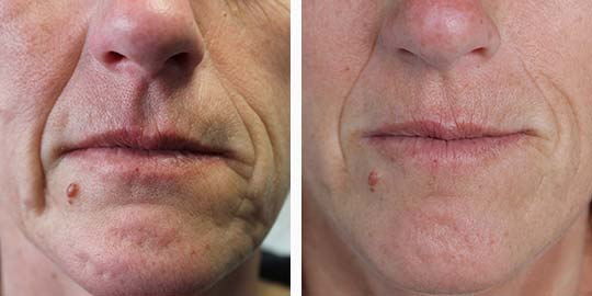 Meso Vytal Skin Treatment