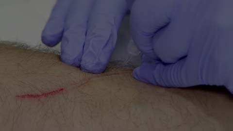 video thumbnail dry needling