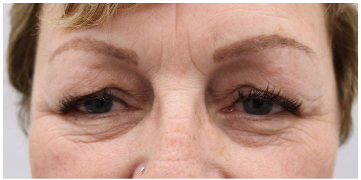 Skin Tightening Treatment Before